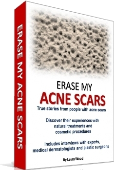 Acne Scars Natural Home Remedies Treatments